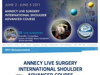 thumb Annecy Live Surgery International